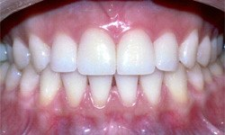 Case 1 Smile after teeth whitening actual patient