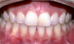 Case 1 Smile before teeth whitening actual patient
