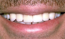 Case 2 Smile after dental procedure actual patient