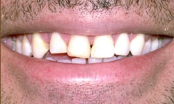 Case 2 Smile before dental procedure actual patient