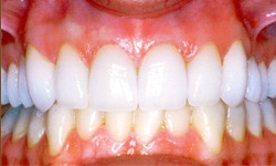 Case 3 Smile after dental implants actual patient
