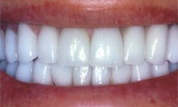 Case 4 Smile after porcelain veneers actual patient