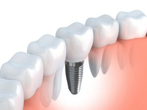 Care of Brampton, ON dental implants protects them for years of service. Dr. Vince Fava and his associate dentists advise many oral hygiene practices.