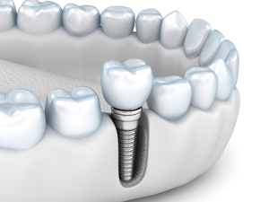 Dental implants in Brampton, Ontario rebuild smiles and restore normal tooth function.